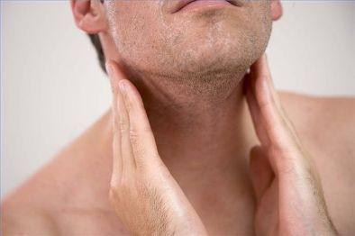 Sintomi Toxoplasmosi